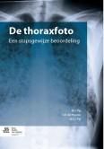 De thoraxfoto